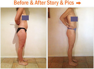 Before & After Story & Photos...